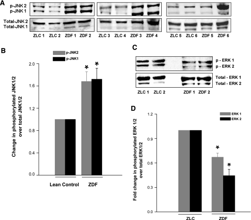 Phosphorylation of JNK1/2 and ERK1/2 in the ZLC or the ZDF rat islets. Islet lysates from control and diabetic rats were prepared in RIPA buffer. A: Total and phospho-JNK1/2 were determined by Western blotting and analyzed densitometrically. B: Data are expressed as fold change in phosphorylation over total JNK1/2. Data are mean ± SEM (error bars) from islet lysates derived from six rats in each group. *P < 0.05 vs. the ZLC islets. Lysates of islets from control and diabetic rats were prepared in radioimmunoprecipitation assay buffer. An equal amount of lysate protein was resolved by SDS-PAGE. Relative abundance of total and phospho-ERK1/2 were determined by Western blotting (C), followed by densitometry (D). Data are expressed as fold change in phosphorylation over total ERK1/2 and are mean ± SEM (error bars) from islets from six rats in each group. *P < 0.05 vs. ZLC islets.