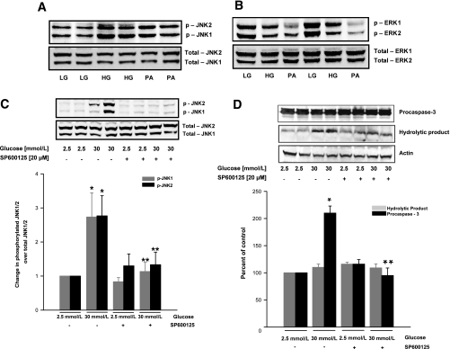 Glucotoxic or lipotoxic conditions differentially regulate JNK1/2 and ERK1/2 and mitochondrial dysfunction in INS 832/13 pancreatic β-cells. INS 832/13 cells were cultured in the presence of low glucose (LG; 2.5 mmol/L), high glucose (HG; 20 mmol/L), or palmitate (PA; 400 μmol/L) for 48 h. At the end of incubation, cells were lysed and the expression of total and phosphorylated JNK1/2 (A) and ERK1/2 (B) was determined by Western blotting. In a separate set of studies, INS 832/13 cells were incubated with glucose (30 mmol/L) with or without SP600125 (20 μmol/L) for 24 h. Cell lysates were prepared in radioimmunoprecipitation assay buffer for Western blot analysis to determine the degree of JNK1/2 (C) and caspase-3 activation (D). Data were quantitated densitometrically and are expressed as mean ± SEM (error bars) from three independent experiments. *P < 0.05 vs. 2.5 mmol/L glucose; **P < 0.05 vs. 30 mmol/L glucose alone.