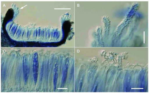 Claviradulomyces xylopiae sexual morph (VIC 31417 mounted in lactic acid-cotton blue). A. Cross section of fully opened, apothecial ascoma (note group of denticulate periphysoids at the margins of apothecium). B. Close-up of periphysoids. C. Hymenium with parallel asci and paraphyses. D. Muricate and denticulate paraphyses extending above the top of asci. Bars: A = 15 μm; B = 10 μm; C = 10 μm; D = 15 μm.