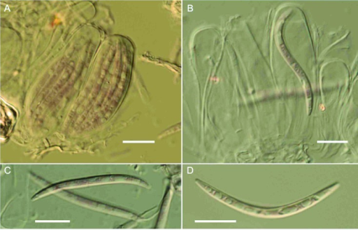 Claviradulomyces xylopiae asci and ascospores (VIC 31417 mounted in lactofuchsin). A. Mature asci containing parallel to somewhat spirally arranged ascospores. B. Single vermiform ascospore within ascus. C, D. Ascospores. Bars: A = 40 μm; B = 35 μm; C = 10 μm; D = 10 μm.