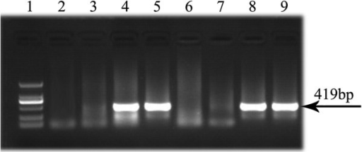 Genotypes detection for the TGF-β2-kd Tg mice. The positive Tg mice detected by PCR. Figure 1 showed the representative lanes of products electrophoresed in 1% agarose gel stained with EB. Lane 1: DNA Marker DL 2,000 (from up to down: 2000 bp, 1000 bp, 750 bp, 500 bp, 250 bp, 100 bp respectively). Lane 2–9: The PCR productions of inserted fragment from different heterozygous transgenic offspring of TGF-β2-kd lines. Lane 2, Lane 3, Lane 6 and Lane 7: WT; Lane 4: Founder 66; Lane 5: Founder 16; Lane 8: Founder 53; Lane 9: Founder 41.
