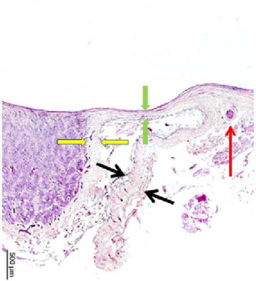 Histophotograph showing the optic nerve head of a highly myopic eyes with the peripapillary arterial circle of Zinn-Haller (red arrow), located the merging point of the dura mater (black arrows) with the scleral at the end of the peripapillary scleral flange (between green arrows), the pia mater and the peripapillary ring as the continuation of the pia mater (between yellow arrows).