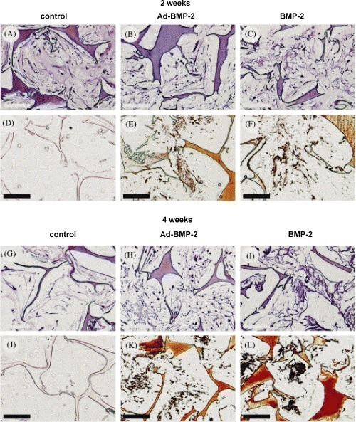 Combination of bone tissue engineering, gene therapy based on human mesenchymal stem cells (MSCs) and silk fibroin biomaterials to study the impact of viral transfection on MSC osteogenic performance. MSCs were transduced with adenovirus containing a human BMP-2 (Ad-BMP-2) gene at clinically reasonable viral concentrations and cultured for 4 weeks. Controls with non-transfected MSCs, but exposed to exogenous BMP-2 concentrations on an analogous time profile as that secreted by the Ad-BMP-2 group, were compared. Both the Ad-BMP-2 MSC group and the exogenous protein BMP-2 group strongly expressed osteopontin and bone sialoprotein. Cells secreted a matrix that underwent mineralization on the silk fibroin scaffolds, forming clusters of osseous material, as determined by micro-computed tomography. The expression of osteogenic marker proteins and alkaline phosphatase was significantly higher in the Ad-BMP-2 MSC group than in the exogenous protein BMP-2 group, and no significant differences in mineralization were observed in two of the three MSC sources tested.The results demonstrate that transfection resulted in higher levels of expression of osteogenic marker genes, no change in proliferation rate and did not impact the capacity of the cells to calcify tissues on these protein scaffolds.These findings suggest additional options to control differentiation where exogenous additions of growth factors or morphogens can be replaced with transfected MSCs. Light microscopy of construct cross sections after 2 weeks (A–F) or 4 weeks (G–L) of cultivation in osteogenic medium (B, C, E, F, H, I, K, L) or control medium (A, D, G, J). MSC were either transduced with Ad-BMP-2 (center column) or exposed to BMP-2 concentrations as secreted and measured for the Ad-BMP-2 transduced cells (right column) or cultivated in control medium (left column). Sections were stained with H&E (A–C; G–I) or with von Kossa (D–F; J–L). Bar length is 100 μm. Reprinted from [63], with permission from Elsevier.