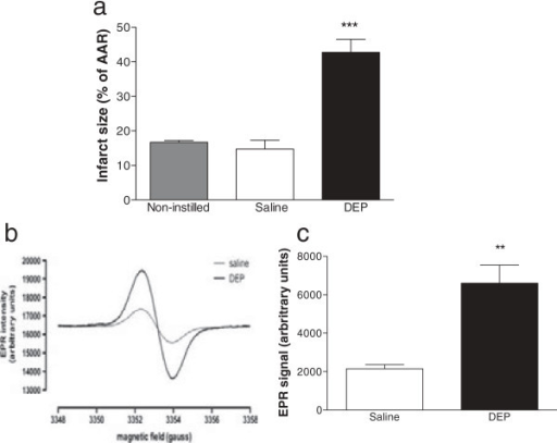 Infarct size and oxidant stress generation was increased in hearts isolated from DEP instilled rats and perfused ex vivo. Myocardial infarct size (a, expressed as percentage of area at risk; AAR) and (b, c) oxygen free radicals (via quantification of CP˙ spin adducts by electron paramagnetic resonance; EPR) in coronary perfusate of hearts from non-instilled rats (non-instilled, grey column) and hearts isolated 6 h after instillation of saline (saline, 0.5 ml, open columns) or DEP (0.5 mg, black column). Results are expressed as mean ± SEM (n = 4-6) **P < 0.01, ***P < 0.001 saline versus DEP; one-way ANOVA followed by Bonferroni post-hoc test.