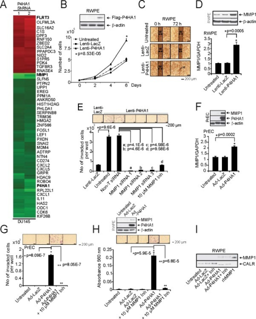 Over-expression of P4HA1 increases cell proliferation and invasionA, Microarray data of selected genes in stable P4HA1 knockdown in DU145 cells. B, Immunoblot analysis showing P4HA1 in RWPE cells (Inset). Stable RWPE-P4HA1 over-expressing cells showed increased cell proliferation than untreated or lacZ over-expressing cells. C, Wound healing assay in stable RWPE-P4HA1 over-expressing cells. An artificial wound was created using a 0.2 ml pipette tip on a confluent monolayer of cells. Images were taken at 0 and 72 h after scratching. The black lines show the margin of scratched area in which double headed arrow indicates scratch width (W) and black arrow indicates complete healing (H) of scratch wound. D, Immunoblot and qPCR analysis of MMP1 in RWPE cells over-expressing lacZ and P4HA1. E, Matrigel invasion assay was performed using lenti-lacZ or lenti-P4HA1 cells. Untreated cells, Non-T siRNA, three independent MMP1 specific siRNA treated cells or in the presence of MMP1 inhibitor were also used in the invasion assay and the invaded cells were counted. Inset, photomicrographs of invaded cells. F, Immunoblot analysis of PrEC cells expressing P4HA1 and qPCR analysis of MMP1 in PrEC cells that are uninfected or lacZ and adeno-P4HA1 infected. G, Matrigel invasion assay using uninfected PrEC cells or cells that are infected with lacZ, adeno-P4HA1 alone or in the presence of 10 μM MMP1 inhibitor. Inset, photomicrographs of invaded cells and H, Matrigel invasion assay using parental RWPE cells or lacZ, adeno-P4HA1 infected cells and adeno-P4HA1 infected cells in the presence of 10 μM MMP1 inhibitor. Inset, photomicrographs of invaded cells and immunoblot analysis of P4HA1. I, Immunoblot analysis of the secreted MMP1 from RWPE cells transiently over-expressing lacZ or P4HA1. The recombinant MMP1 (rhMMP1) served as positive control for MMP1 and CALR is used as a loading control. All bar graphs are shown with ± SEM. See also Supplementary Figures S11 -14.