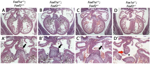 Atrioventricular septal defects in Foxf1a+/−; Foxf2+/− compound heterozygote embryos at E14.5.Foxf1a+/−; Foxf2+/− embryos displayed atrial septal defects including absence of the dorsal mesenchymal protrusion (D, D′, black arrows). Compound heterozygotes also displayed expanded mesenchymal cap of primary atrial septum (red arrow) (D, D′). Wild-type (A, A′), Foxf1a+/− (B, B′), and Foxf2+/− embryos (C, C′) showed no atrial septal defects. P-values (Fisher's exact test): Foxf1a+/− (9 embryos) vs wild-type (4 embryos) = 1; Foxf2+/− (2 embryos) vs wild-type = 0.33; Foxf1a+/−; Foxf2+/− (3 embryos) vs wild-type = 0.03.