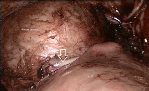 Dissection of urinary bladder from the cervical myoma and the mobilization of the fibroid