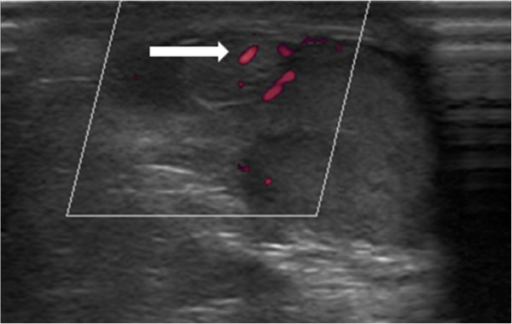 Power Doppler ultrasound of the mass in patient 2. Image shows normal flow (white arrow).