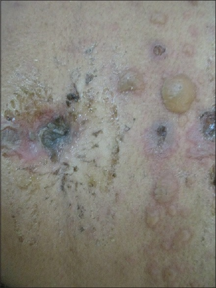 Bullous lesions over a background of urticarial lesions in pemphigoid gestationis