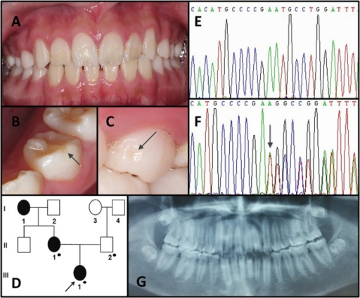 Clinical and mutation analysis of Family 2.(A) Frontal clinical photograph of the 13-year-old proband. (B, C) Representative examples of enamel pitting in the proband are illustrated by the arrows in the photographs. (D) Pedigree of Family 2. Black dots indicate members recruited for this study. (E,F) ENAM exon 5 sequencing chromatogram of the proband's father (II-2) (E), and the proband (III-1) (F), revealed a single-base deletion mutation: c. 139delA, p. M47Cfs*11. (G) Panoramic radiograph of the proband.