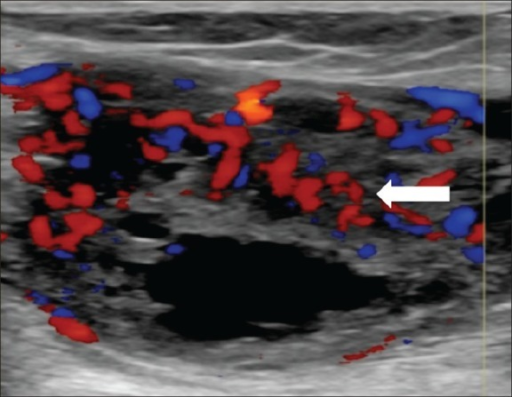 55-year-old female with right posterior calf pain diagnosed with tenosynovial giant cell tumor. Ultrasound of the soft tissue mass demonstrates solid and cystic components. Doppler ultrasound shows prominent vascularity within the solid, echogenic components of the lesion (arrow).