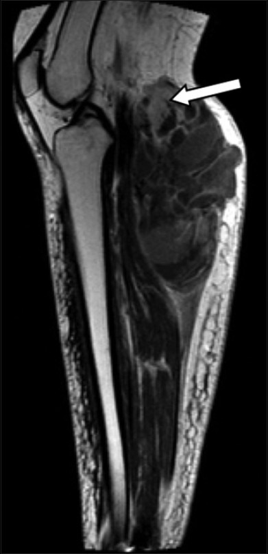 55-year-old female with right posterior calf pain diagnosed with tenosynovial giant cell tumor. Sagittal T1-weighted MR post-contrast imaging reveals enhancement of solid areas (arrow).