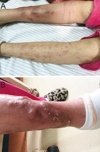 A) Right lower extremity lesions, which were blistered, painful upon palpation, and showed signs of inflammation. B) Purulent secretion draining from the lesions.