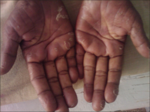 Clinical photograph of pruritic desquamating lesions on the palms