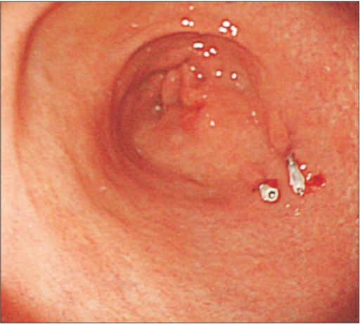 Preoperative endoscopic clipping. Several metal clips were applied in the preoperative endoscopy.