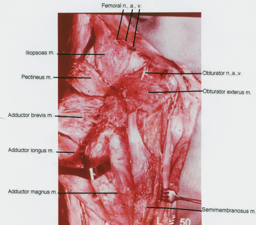 iliopsoas muscle; pectineus muscle; adductor brevis mus | Open-i