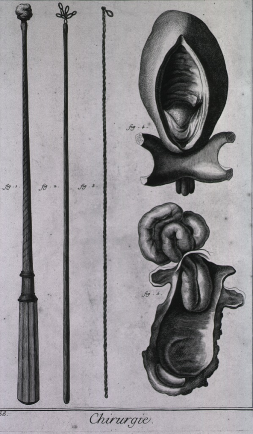 <p>Displayed are instruments to withdraw foreign bodies from the esophagus; insisted stones inside the blatter and a stangulated intestinal hernia.</p>