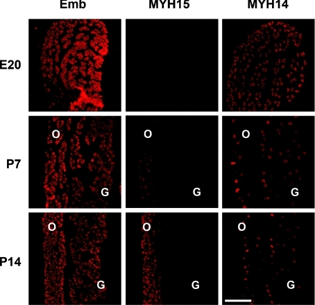 Serial sections of developing rat EO muscles stained for embryonic MYH (left panels), MYH15 (middle panels) or MYH14 (right panels)Note that MYH15 is undetectable in fetal muscles (E20), is barely visible in the orbital layer at postnatal day 7 (P7) and is clearly expressed at P14. In contrast, MYH14 is expressed in all fibres in fetal EO muscles and disappears in most fibres except the slow-tonic fibres during early postnatal stages. Scale bar, 100 μm.