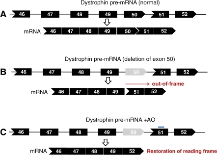 Example of exon skipping therapy for DMD patients with deletion of exon 50. A. Normal dystrophin transcript and mRNA. B. Deletion of exon 50 disrupts the open reading frame, leading to a premature stop codon, unstable mRNA, and a truncated unstable protein. C. Targeted skipping of exon 51 using antisense oligonucleotides, such as AVI-4658 or PRO051 (blue line), restores the reading frame and produces a truncated but functional dystrophin that lacks exons 50 and 51.