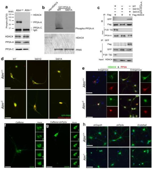 The PP2A-A subunit, PR65, is a novel ATM target and mediates nuclear accumulation of HDAC4 in ATM-deficient neuronsa) Protein extracts from Atm+/+ and Atm−/− mouse cerebellum were immunoprecipitated with the PR65, PP2A-C or HDAC4 and blotted with phospho-[S/T]Q antibody.b) In vitro ATM kinase assays of His-tagged HDAC4, GST-tagged PR65 or PR65S401A were performed with N2a cell extract.c) Co-immunoprecipitation assays of PP2A-A and HDAC4 in lysates prepared from N2a cells with overexpression of GFP-PP2A-A (WT, S401A or S401D) and Flag-HDAC4. Lysates were immunoprecipitated with anti-Flag or anti-GFP antibodies and blotted with phospho-[S/T]Q antibody.d) Representative images of PP2A distribution in Atm+/+ and Atm−/− cultured neurons with co-expression of GFP-PP2A-A, wild-type, S401A or S401Dand mCherry-PP2A-C. Scale bar, 20 μm.e) Immunofluorescent images of endogenous or exogenous HDAC4 (green) and PP2A (red) at DIV14 in wild-type and Atm−/− primary neurons. Scale bar, 25 μm.f) Effect of inhibition of ATM activity by caffeine on the localization of GFP-HDAC4 in wild-type E16.5 cortical neurons. The five small panels to the right are isolated images of the cell body. The numeral in each of the small panels represents the time elapsed (hours) since the addition of ATM inhibitor. Scale bar, 20 μm.g) Effect of knocking down PP2A on ATM-deficient GFP-HDAC4 nuclear accumulation in neurons. Scale bar, 20 μm. Small panels as in (f).h) Immunofluorescent images of HDAC4 (green) at DIV7 in either shGapdh- or shPp2a-infected wild-type and Atm−/− primary neurons with one hour pretreatment with the PP2A-specific inhibitor, Endothall (5 μM). Scale bar, 25 μm.