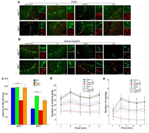 a-b) Representative images of PCNA- and cleaved caspase3-stained Purkinje cells show the effects of lentiviral delivery of different HDAC4 mutants on degenerative progression in Atm−/− mouse cerebellum.. NLS-HDAC4 (cytoplasmic) = 4A; nuclear export mutant HDAC4 (nuclear) = L1062A; Non-phosphorylatable HDAC4 (nuclear) = 3SA. Scale bar, 50 μm.c) Rota-rod tests show average latency to fall for wild type (+/+) and Atm−/− animals after injection of different HDAC4 as well as S401D lentiviral particles.d-e) Open–field tests show effects of different lentiviral HDAC4 as well as S401D on the spontaneous locomotor activity (d) and exploratory activity (e) in Atm−/−mice. Each treatment group consisted of 4-6 animals. Data are presented as mean values ± SEM.