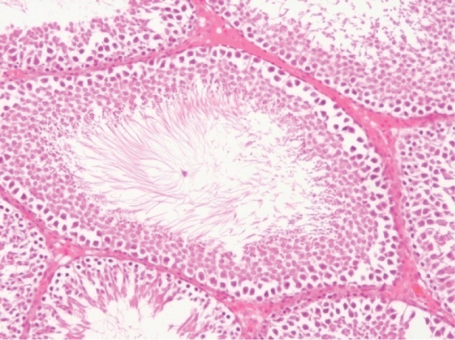 Section of rat testis showing the normal seminiferous tubules, interstitium, spermatids and spermatogenic cells at different stages of development. H&E ×400.