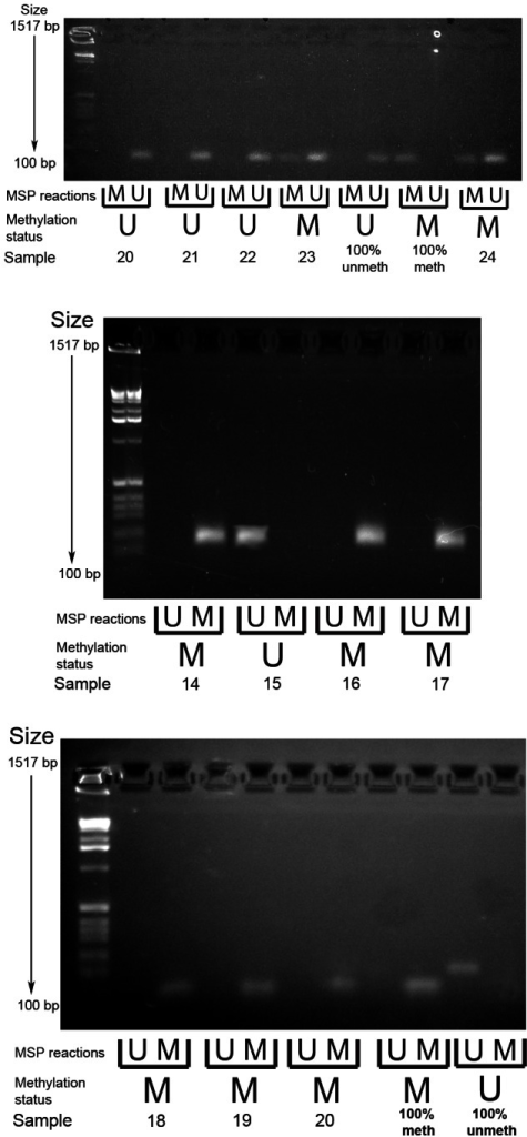 Example gel image of PCDH7 promoter methylation-specific PCR (top gel) and SLIT2 methylation-specific PCR (bottom and middle gels).MSP reactions row refers to wells for the methylated and unmethylated reactions for the methylation specific PCR. Methylation status refers to the final determination of methylation within each serrated adenoma sample. Row key: MSP reactions – M = methylation specific reaction, U = unmethylated specific reaction; Methylation status – M = methylated, U = unmethylated.