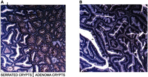 Image of IHC stains for SLIT2.(a) Image of IHC stain for SLIT2 on mixed serrated/adenomatous polyp. Dotted line shows demarcation between serrated and adenomatous crypts. Top right of image shows normal expression (adenomatous area). Bottom left of image shows loss of expression (serrated area). (b) Image of IHC stain for SLIT2 on pure serrated area of mixed polyp to demonstrate serrated morphology.