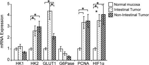Expression of glucose metabolism-related proteins in intestinal and non-intestinal gastric cancers. Hexokinase 1 (HK1) mRNA levels were similar to those in normal mucosa, while HK2 mRNA levels were higher in both intestinal and non-intestinal gastric cancers (P < 0.01). Glucose transporter 1 (GLUT1) expression increased more in intestinal tumors than in normal mucosa (P < 0.01), but were unchanged in non-intestinal tumors. Glucose-6-phosphatase (G6Pase) expression decreased, but the difference was not significant. The mRNA expression of proliferating cell nuclear antigen (PCNA) and hypoxia-inducible factor 1α (HIF1α) increased more than three-fold compared to normal mucosa (P < 0.01). Data are expressed as mean ± SEM *P < 0.05 (ANOVA). GLUT1; Glucose transporter 1, G6Pase; Glucose-6-phosphatase, HIF1α; Hypoxia-inducible factor 1α, HK1; Hexokinase 1, HK2; Hexokinase 2, PCNA; Proliferating cell nuclear antigen, SUV; Standardized Uptake Value.