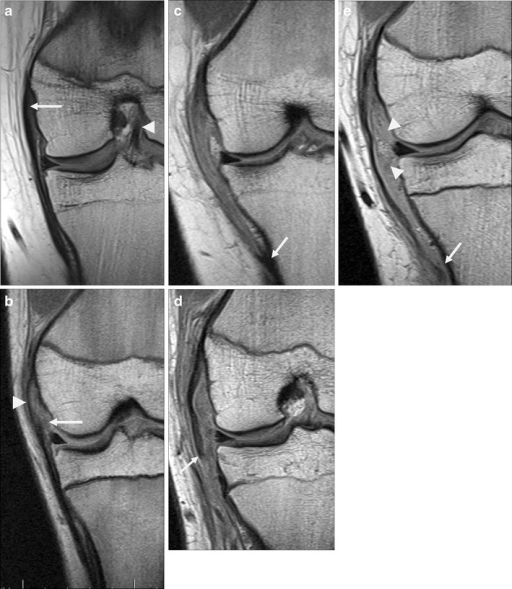 Medial collateral ligament on coronal PD images, reoriented as if all were left knees for comparative purposes. a Normal MCL, appearing slightly thicker proximally (arrow) than distally, which is typical. Also note the intact ACL (arrowhead). b A low-grade partial tear of deep MCL fibres including medial meniscofemoral ligament (arrow). Superficial fibres are intact (arrowhead). c High-grade sprain involving nearly the entire length of MCL; note normal appearing tibial attachment (arrow). d MCL rupture just distal to knee joint line (arrow). e A distal rupture near tibial attachment (arrow), with associated tears of deep fibres including meniscofemoral and meniscotibial ligaments (arrowheads)