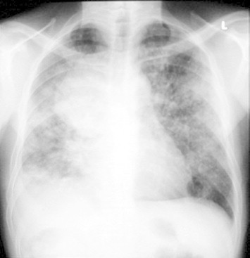 Chest X-ray a year later demonstrating extensive bilateral lung involvement suggesting miliary spread.