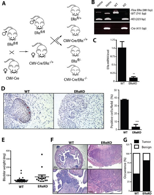 Total ERα knockout increased the cancer incidences in BBN-induced BCa model(A) ERαKO mouse breeding scheme. Female mice with Cre coding sequence under the control of human Cytomegalovirus promoter (CMV-Cre) were bred with male floxERα mice (ERαfl/fl) to generate heterozygous ERαKO mice (CMV-Cre/ERα−/+). Female CMV-Cre/ERα−/+ mice were then mated with male ERαfl/fl mice to generate WT and ERαKO mice. (B) Tail genomic DNA was isolated and mouse genotypes were identified by PCR using primers flanking ERα exon 3 and Cre. (C) mRNA was collected from whole bladders of female WT and ERαKO mice. Quantitative PCR (qPCR) was used to compare ERα mRNA level. **, p<0.01 compared to WT mice by t-test. (D) ERα expression was detected in bladders of female WT and ERαKO mice by IHC. Red arrows indicate cells expressing ERα protein. Quantifications of ERα positive cells in the mice were shown at right (n=3 for each). ***, p<0.001 compared to WT mice by t-test. (E) Bladder weights were compared between WT (n=28) and ERαKO (n=16) female mice at 35 weeks old. p=0.0047 by t-test. (F) Representative images of BBN induced BCa of WT and ERαKO female mice at 35 weeks old. (G) BBN induced BCa incidence was compared between WT (n=28) and ERαKO (n=16) female mice at 35 weeks old. p=0.03 by Fisher's exact test.