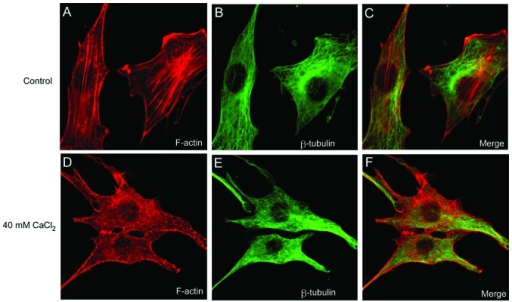 External addition of CaCl2 to the culture media and 1 h incubation disrupted the F-actin filaments, stained with Texas Red-X phalloidin, but did not affect the microtubules, stained with fluorescein isothiocyanate-conjugated antibody. (Magnification, ×250).
