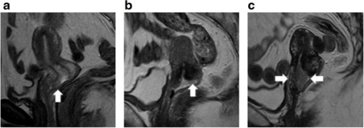 The relationship between the MRI findings before surgery and the final depth of tumor invasion. a. Patient No.6. On T2-weighted sagittal images, a small mass of high intensity grew on the anterior lip of the uterine cervix superficially. The stromal tissue was not torn by a tumor. In this case, the depth of invasion was 1.8 mm on the surgical specimen. b. Patient No. 8. On T2-weighted sagittal images, a flat tumor grew on the posterior lip of the cervix. The low intensity of cervical stroma was somewhat irregular. We diagnosed the lesion as invasive carcinoma. In this case, a depth of invasion was 3.1 mm on the surgical specimen. c. Patients No. 9. On T2-weigted sagittal images, the papillary tumor was detected on the cervical os. The stroma of the anterior and posterior lips was torn by a tumor. In this case, the depth of invasion was 9 mm on the surgical specimen.