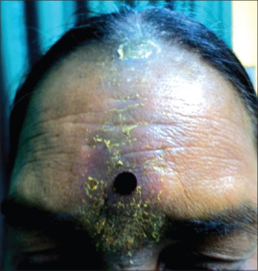 Allergic contact dermatitis extending up to glabella and hair parting. Note that patient continues to wear the bindi in spite of active dermatitis