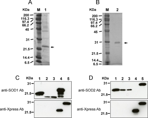 Specificity of anti-SOD antibodies.Recombinant BmSOD1 (A) and BmSOD2 (B) were separated on a 12% SDS-PAGE gel, transferred onto a nitrocellulose membrane, and processed for immunoblotting with anti-SOD antibodies and anti-Xpress antibody. Specificity of anti-SOD antibodies and anti-Xpress antibodies (C and D) was tested on the following samples (by lane): 10 μg of HeLa cell lysate as a positive control (lane 1); 10 μg of BmN4 lysate (lane 2); 10 μg of testis lysate (lane 3); 0.5 μl of recombinant BmSOD1 protein (lane 4); and0.1 μl of recombinant BmSOD2 protein (lane 5). These samples were tested against anti-SOD1 antibody (C, Upper panel), anti-SOD2 antibody (D, Upper panel) and anti-Xpress antibody (C and D, Lower panel).