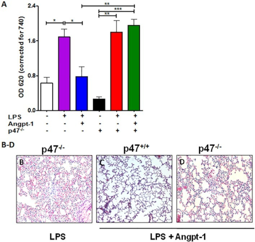 Angpt-1 mediated barrier defense in acute systemic inflammation requires p47phox.(A) Spectrophotometric quantification at 620 nm of intravenously injected Evans blue dye extravasation into the lungs of wildtype littermates (p47+/+) and p47phox KO mice (p47−/−) 16 hours after LPS (15 mg/kg IP) with prior control adenovirus (control) or Angpt-1 adenovirus (1 x 109pfu/mouse) gene transfer. (B-D) Lung photomicrographs from above conditions (representative of n = 3–5 mice per condition). Scale bar 50 μm.