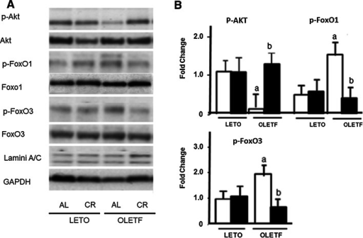 Protein expression of p-Akt, p-FoxO1, and p-FoxO3 in the hearts of LETO and OLETF rats with or without CR. a Representative results. b Summarized results. Open bar indicates rats fed ad libitum (AL) and closed bar indicates rats with calorie restriction (CR) in each strain. Each group contained 6 animals. Values are the mean ± SE. ap < 0.05 versus LETO-AL rats; bp < 0.05 versus OLETF-AL rats