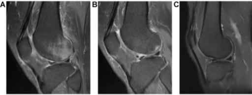 Magnetic resonance T2-weighted images of Type I injury: A) first sagittal MRI of the knee; B) second sagittal MRI of the knee(after 3 months); c) third sagittal MRI of the knee (after 9 months).