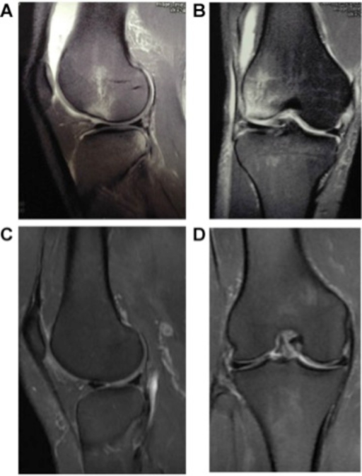 Magnetic resonance T2-weighted images of Type II injury: A) first sagittal MRI of the knee; B) first coronal MRI of the knee; C)third sagittal MRI of the knee (after 9 months); D) third coronal MRI of the knee (after 9 months).