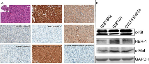 Immunohistochemistry Analysis(A). Immunohistochemistry Analysis of Receptor Tyrosine Kinases (c-Kit, HER-1, IGF-1R, HER-2, AXL and c-Met) with H/E staining, PTEN (positive control) and diluent (negative control), in GIST Specimens. Representative photomicrographs of patient 1 with H-Score (scale 0-300) and magnification = 20x. (B). Western blotting analysis for c-Kit, HER-1 and c-Met expression in GIST882, GIST48 and GIST430/654 cells.