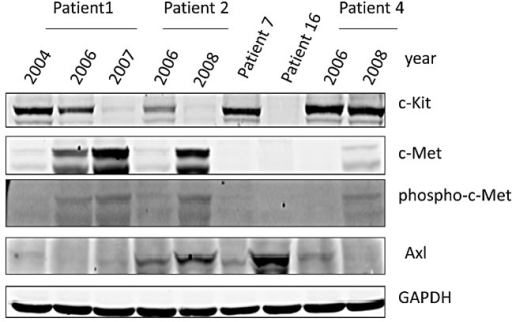 Western Blotting for c-Kit, c-Met, phosphor-c-Met, and AXL in GIST Patient SamplesGIST patients [1, 2, 4, 7 and 16] analyzed by Western blotting for c-Kit, c-Met, Phospho-c-Met and AXL expression. Patient 1, 2 and 4 had serial specimen's available pre- and post-IM. A piece of frozen tissue was homogenized, lysed with NP-40 lysis buffer and 50 μg total protein was resolved by electrophoresis on a 10% SDS-PAGE. Immunoblotting was performed using anti-c-Kit, anti-c-Met, anti-phospho-c-Met and anti-AXL antibodies, respectively. GAPDH is used as a loading control.