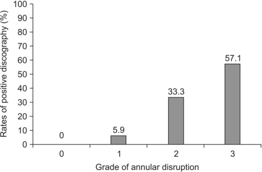Grade of annular disruption and rates of positive discography (linear by linear association=34.425, p<0.001). Positive discography is classified discs with similar or concordant pain. Grade 0, none; grade 1, into inner annulus; grade 2, into outer annulus; grade 3, beyond outer annulus.