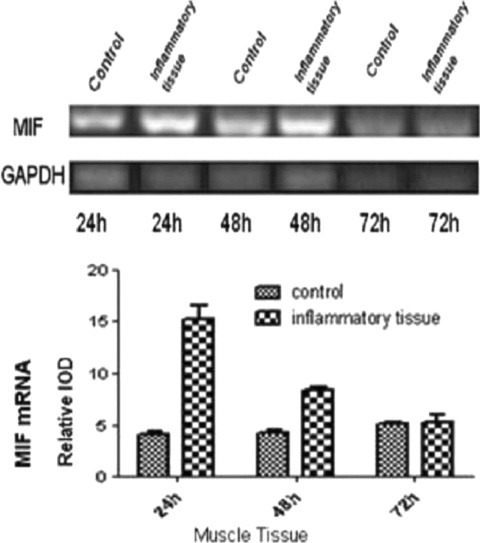 The expression of MIF mRNA in inflammatory and normal tissues. There were little changes in MIF gene expression in normal tissues at three time-points. There was a threefold increase in MIF mRNA expression in inflammatory tissues at 24 hrs compared with normal tissues (P < 0.05). There was a twofold increase in MIF mRNA levels in inflammatory tissues at 48 hrs compared with normal tissues (P < 0.05). Semi-quantitative RT-PCR was performed in duplicate to minimize experimental error on the value calculated. All columnar values were expressed as means and standard deviations. A pattern of results were analysed by repeating at least three times. P < 0.05 compared with the normal group.