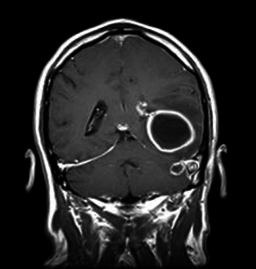 MRI image of the head in coronal plane shows the circular pathological mass in the left temporal lobe-abscess (the 52-year-old patient)