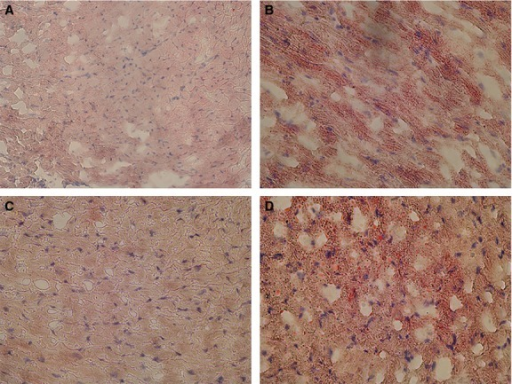 Accumulation of lipids in hearts of mice fed HFD. Ventricular slices were stained for lipids using Oil Red O. Representative images are shown for hearts from WT mice fed (A) ND, or (B) HFD and SIRT3 KO mice fed a (C) ND or (D) HFD.