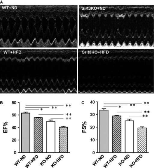 Assessment of cardiac function by echocardiography. (A) Representative M-mode tracings are shown. (B) Ejection fraction and (C) fractional shortening were determined. Values are means ± SEM, n = 10. PI = ns, PD and PS ≤ 0.01; *P ≤ 0.05; **P ≤ 0.01.