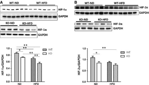 HIF-1α and HIF-2α are reduced by HFD and SIRT3 loss in the heart. WT and SIRT3 KO mice were fed ND or HFD for 16 weeks. Hearts were extracted and Western blot analysis was performed on ventricular lysates. (A) Representative blot of HIF-1α. Blot was stripped and reprobed for GAPDH as a loading control. Bar graph shows mean ± SEM for n = 6. PI = ns, PD and PS ≤ 0.01; *P ≤ 0.05; **P ≤ 0.01. (B) Representative blots of HIF-2α and GAPDH. Values are mean ± SEM (n = 6 ND and 5–7 HFD). PI = ns, PD ≤ 0.05, PS ≤ 0.01; *P ≤ 0.05; **P ≤ 0.01.