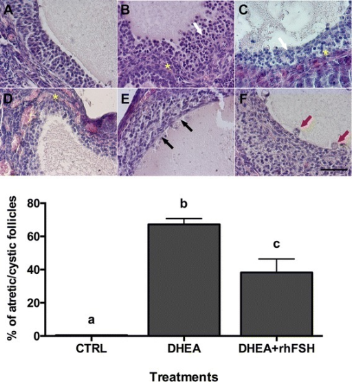 Effect of different hormonal treatments on the percentage of follicles presenting atretic/cystic signs. Upper panel Representative images of typical morphological changes in antral follicle walls of ovaries isolated from controls (a) compared to DHEA-treated mice (b, c, d, e, f), stained with hematoxylin and eosin. In the control (a) theca externa, theca interna, basal membrane and granulosa cells layers appear normal. b, c and d represent progressive changes associated with follicular atresia (ie. pyknosis, disruption of the basement membrane (asterisks) and of granulosa layers (white arrows) and invasion of blood cells). Cystic features are described by thin and elongated epithelioid cells in the inner surface of the wall (e, black arrows) and macrophages in the cystic fluid (f, red arrows). Bar = 50 μm. Lower panel The effect of different hormonal treatment was evaluated on the population of antral follicles >300 μm of diameter. Data were analyzed by one-way ANOVA, followed by Fisher's LSD multiple comparison test; different letters indicate significant differences between groups (P <0.05)