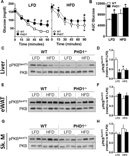 PHD1 deficiency induces systemic and liver-specific insulin resistance.An intraperitoneal ITT (0.5 U/kg total body weight) was performed in 6-hour unfed WT (open symbols/bars) and PHD−/− (black symbols/bars) mice after 11 weeks of either low-fat diet (LFD, squares) or high-fat (HFD, circles) diet. Blood glucose levels were measured at the indicated time-points (A) and the AUC of the glucose excursion curve was calculated as a measure of insulin resistance (B). In separate experiments, mice were sacrificed 15 min after insulin injection and tissue-specific insulin signaling was studied in liver, eWAT and skeletal muscle (Sk. M) by Western blot. Representative blots are shown in (C,E,G). Densitometric quantification was performed and results were expressed as fold change relative to WT-LFD mice (D,F,H). Data are means ± SEM (n = 4 for LFD-WT; n = 7 for LFD-PHD1−/−; n = 5 for HFD-WT; n = 7 for HFD-PHD1−/−). *p < 0.05 vs LFD mice, #p < 0.05 vs WT mice.
